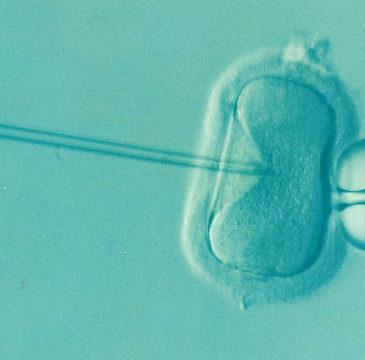 post 65 - FIV transplante de útero