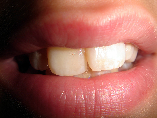 post 92 - O que a fertilidade tem a ver com os dentes
